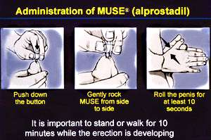 Best ED Doctor in Mumbai MUSE image how to administer MUSE inserting in urethra