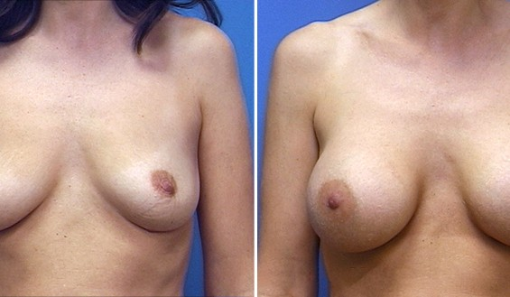Breast enlargement picture before surgery and after surgery