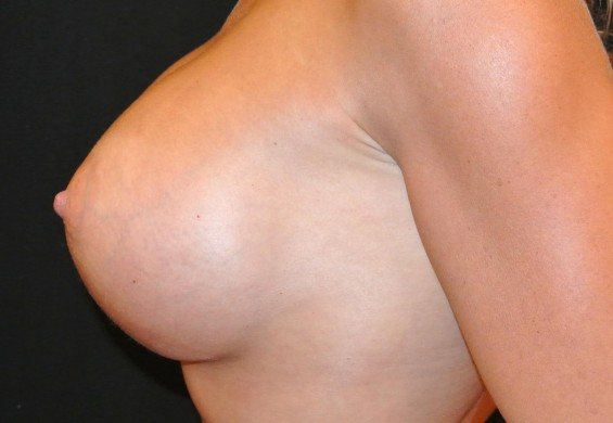 image of female breast