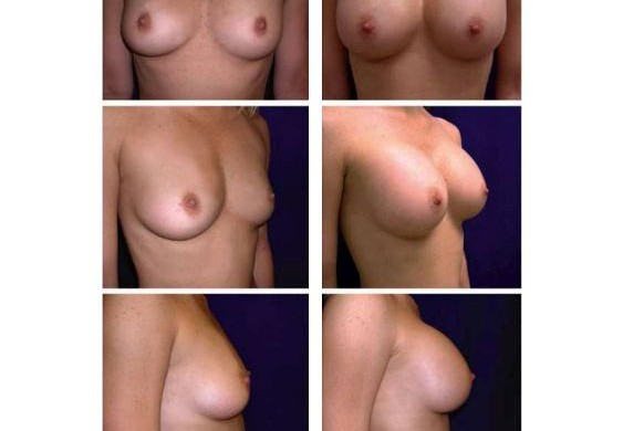 image of female breasts showing mammoplasty results