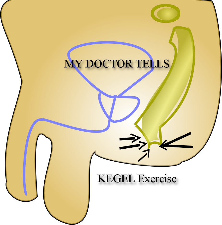 kegel exercise mydoctortells is alternate contraction and relaxation of pelvic floor muscles achieved by contraction and relaxation of anal sphincter