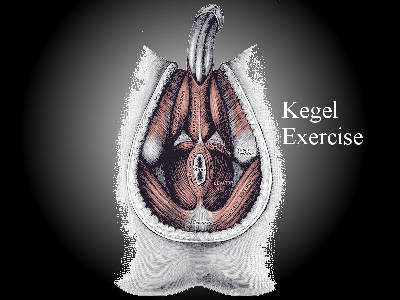Alternate contraction and relaxation of pelvic floor muscles is called pc muscle exercise or Kegel exercise