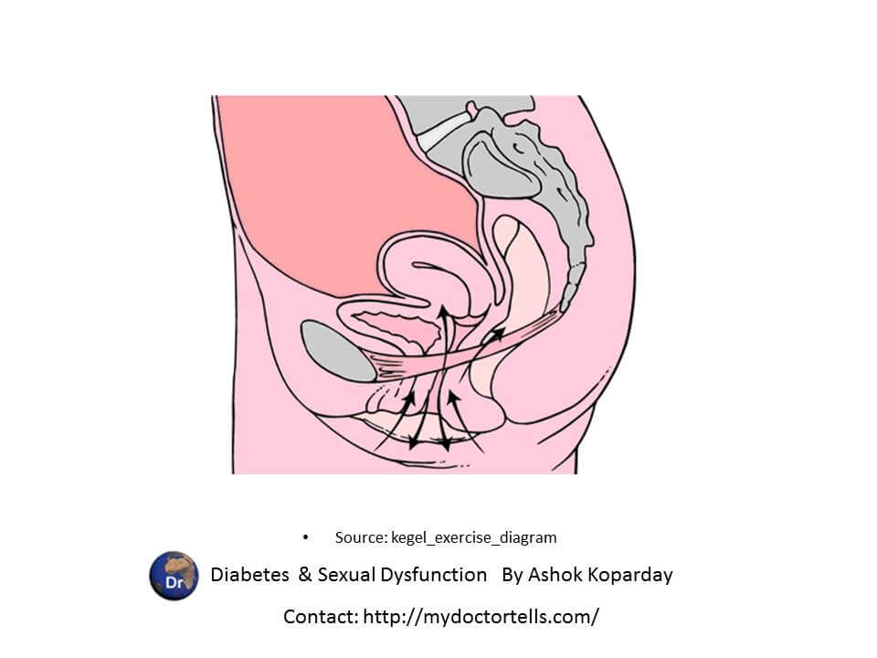 Kegel exercise pubococcygeous muscles perineal muscles Sexual Health Best World Class Premier Treatment Samadhan India, Best Sexologist Mumbai by Ashok Koparday