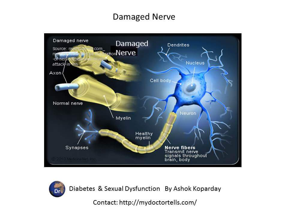 damage nerve picture  Sexual Health Best World Class Premier Treatment Samadhan
