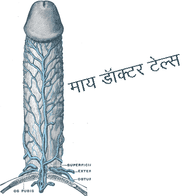 ling khada karney kay upay Top Sexologist in India Dr. Ashok Koparday Ex Teaching Faculty KEM Hospital & JJ Hospitals Medical Director Samadhan Health Studio Center of Excellence